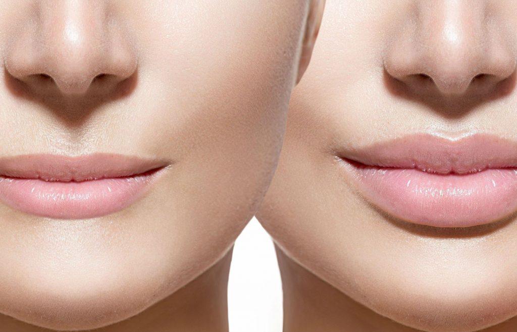 Увеличенные губы. Фото до и после