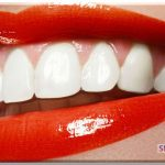 Как отбелить зубы в домашних условиях2