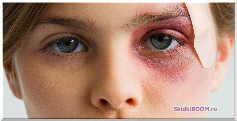 Как быстро убрать синяк под глазом за один день в домашних условиях?