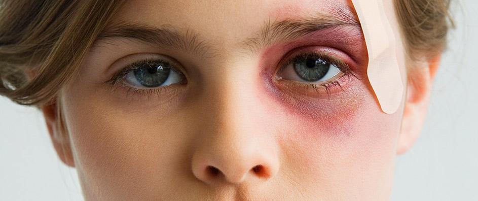 Как и чем быстро вылечить синяк под глазом от удара: лечение в