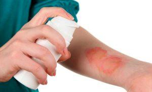Что делать при ожоге кипятком? И как в домашних условиях снять боль?